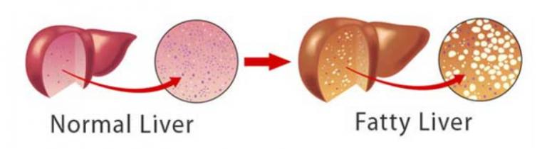 fatty liver vs normal liver